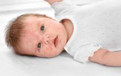 eczéma de bébé